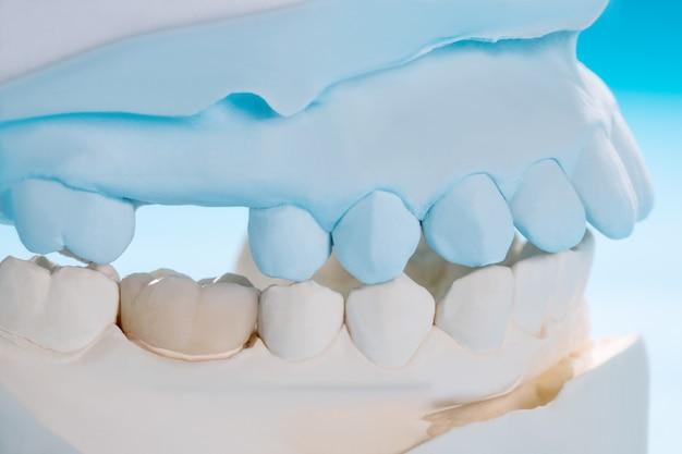 Os dentes do close up / protéticos ou protéticos / únicos coroam e restauram o reparo expresso do modelo do equipamento da ponte.