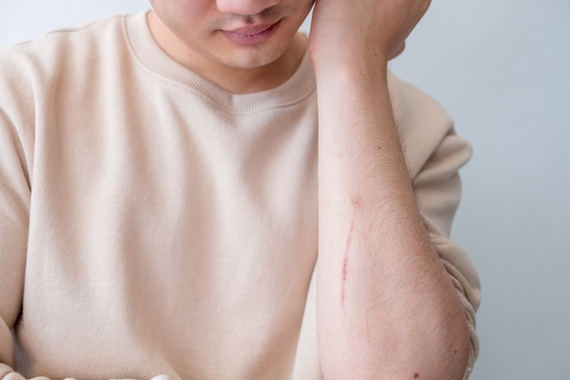Os homens sentem dor nos braços causada por acidentes.