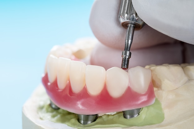 Os implantes dentários do close up apoiaram a overdenture no azul.