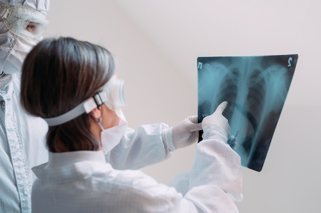 Os médicos examinam a radiografia de pneumonia de um paciente covid-19 na clínica. conceito de coronavírus.