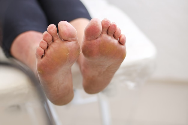 Os pés da cliente antes do tratamento pedicuro dos pés no salão de beleza pela esteticista.