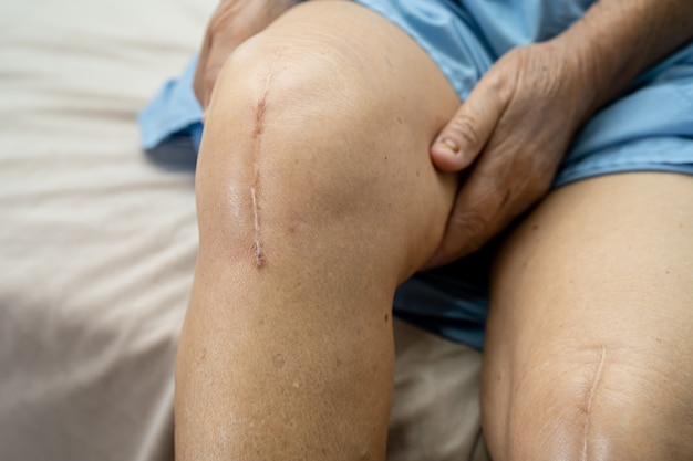 Paciente asiática idosa mostra cicatrizes na articulação total do joelho