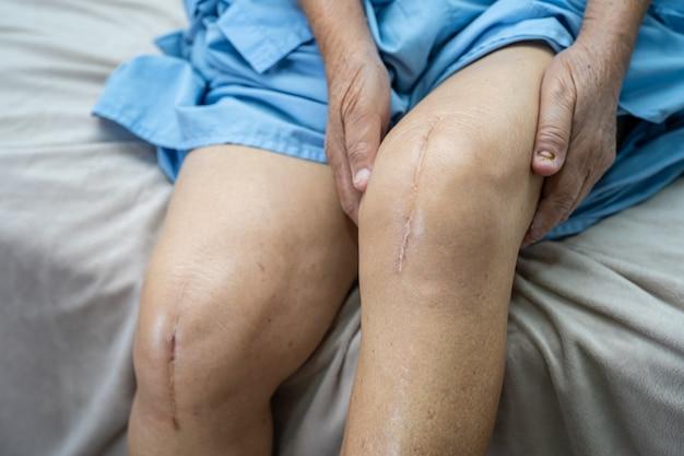 Paciente asiática idosa mostra suas cicatrizes cirurgia de substituição total da articulação do joelho cirurgia de sutura