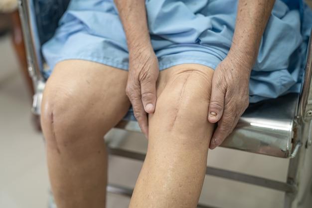 Paciente asiática idosa mostra suas cicatrizes substituição cirúrgica total da articulação do joelho