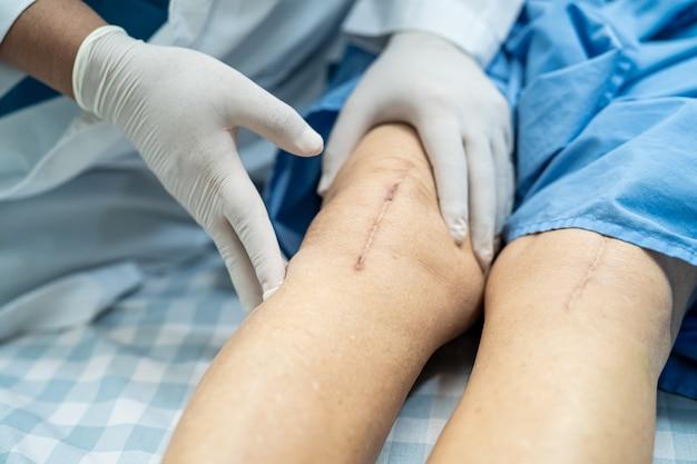 Paciente asiática idosa ou idosa mostra suas cicatrizes cirúrgicas