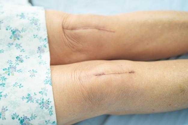 Paciente asiática, idosa ou idosa, mostra suas cicatrizes substituição cirúrgica total da articulação do joelho Foto Premium