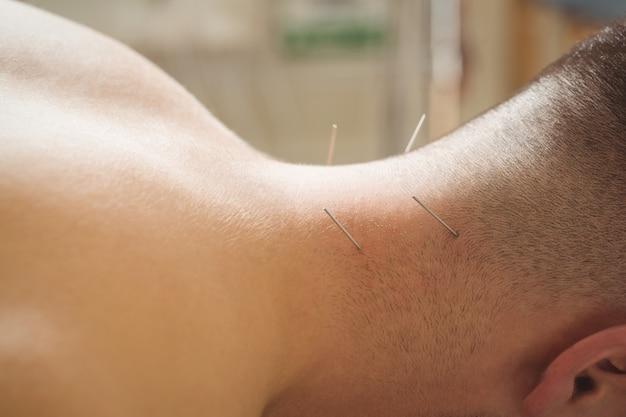 Paciente com agulhamento seco no pescoço