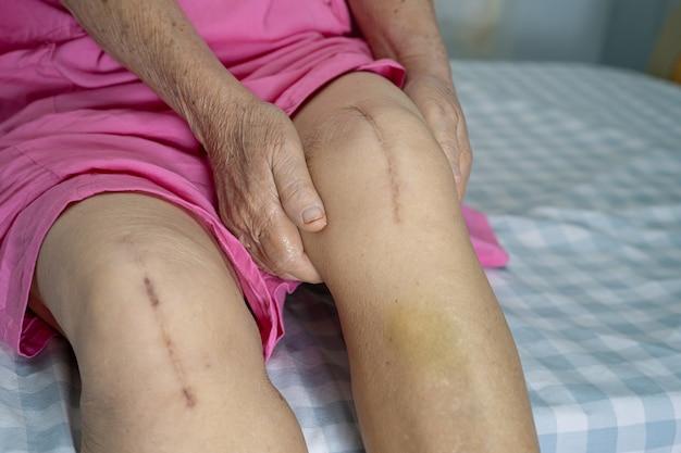 Paciente de mulher idosa asiática sênior ou idosa mostra suas cicatrizes substituição cirúrgica total da articulação do joelho artroplastia de cirurgia de ferida de sutura na cama na enfermaria do hospital de enfermagem, conceito médico forte e saudável.
