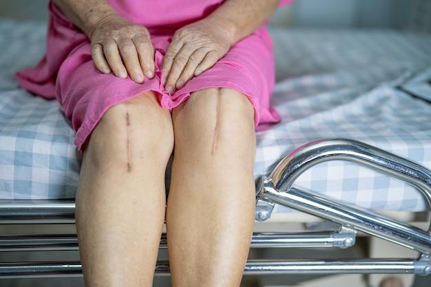 Paciente de mulher idosa ou sênior asiática mostra suas cicatrizes substituição cirúrgica total da articulação do joelho artroplastia de cirurgia de ferida de sutura na cama na enfermaria do hospital de enfermagem, conceito médico forte e saudável.