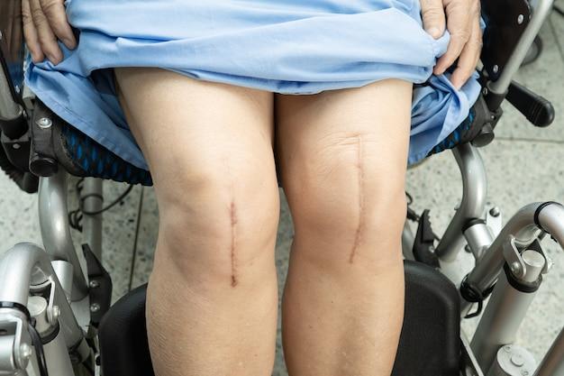 Paciente idosa asiática mostra suas cicatrizes substituição cirúrgica total da articulação do joelho