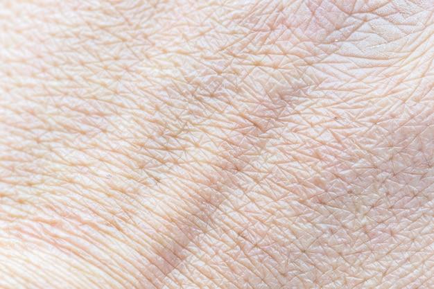 Padrão de pele humana com células e textura de linhas.