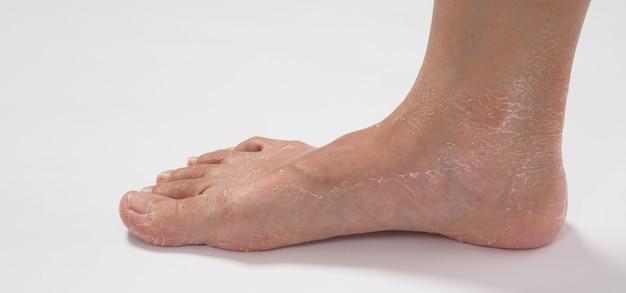 Peeling de pé ou remover pele morta em fundo branco.