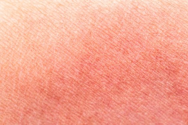 Pele com queimaduras de sol como textura ou plano de fundo. foco seletivo. macro extremo.