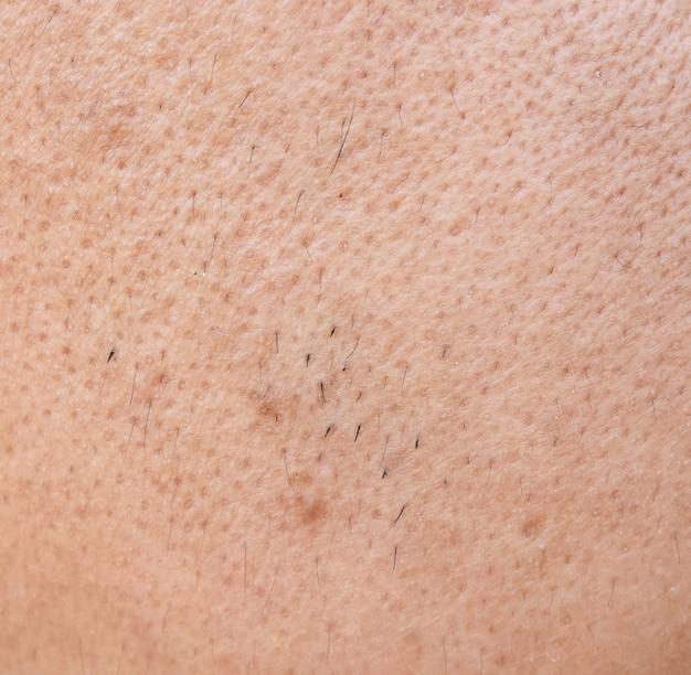 Pele de rosto de homem asiático de superfície
