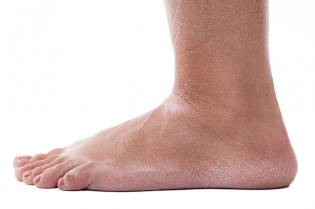 Pele desidratada nos calcanhares de pés femininos