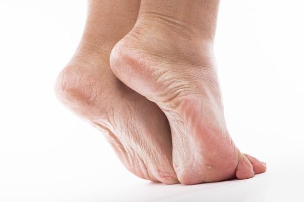 Pele desidratada nos calcanhares dos pés femininos