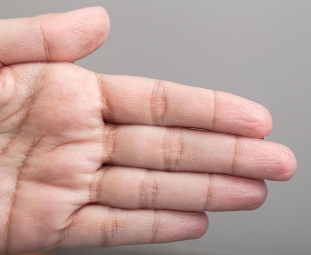 Pele enrugada das mãos