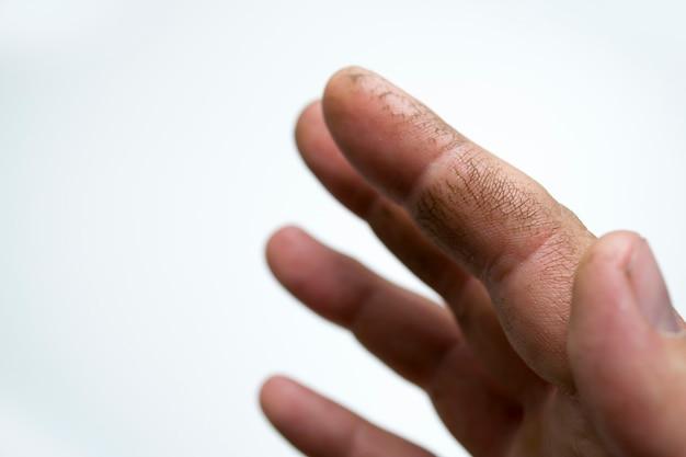 Pele rachada nos dedos pele seca seu creme vai ajudar essas mãos falta de vitaminas