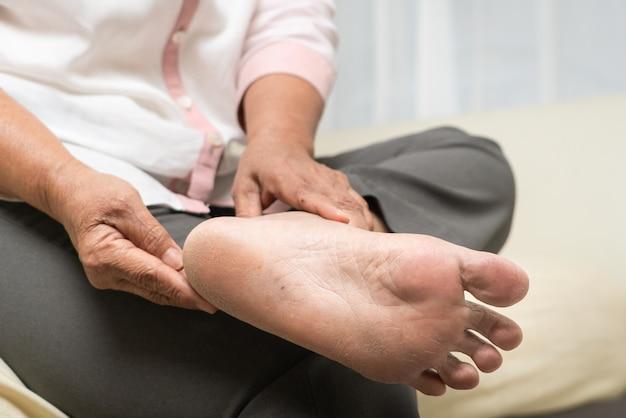 Pele seca e córnea no pé da mulher sênior
