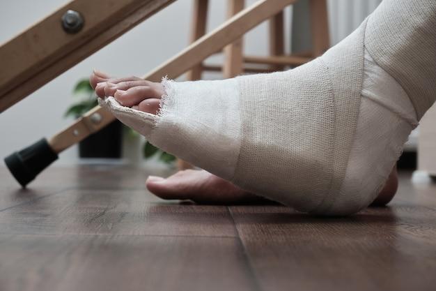 Perna quebrada engessada, perto de muletas. reabilitação domiciliar após uma perna quebrada.