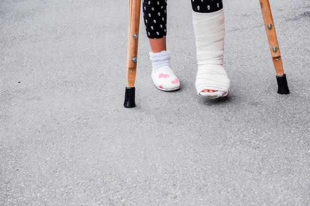 Pernas de menina em elenco ortopédico de muletas andando na rua