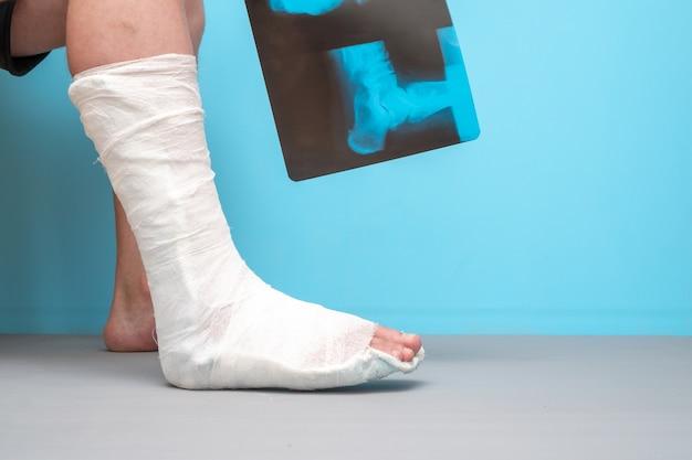 Pernas de um homem com uma perna quebrada em um fundo azul. .