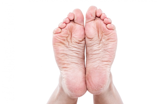 Pernas femininas com superaquecimento pele seca desidratada em saltos closeup