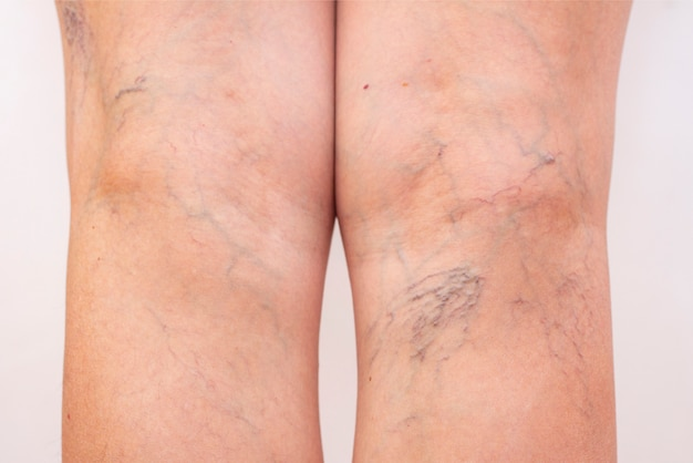 Pernas femininas com varizes e aranhas nas pernas.