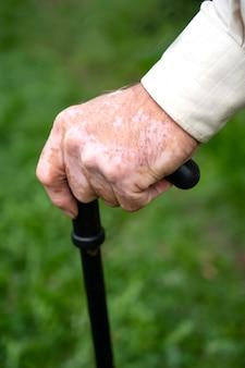 Perto de uma mão masculina com pigmentos de vitiligo ao ar livre