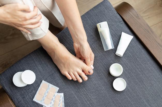 Pés descalços de mulher com uma lesão na unha do dedão do pé