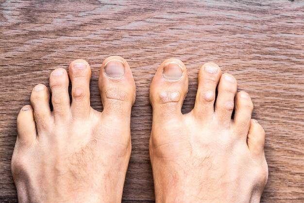 Pés do homem descalço com dermatite da psoríase em seus dedos.