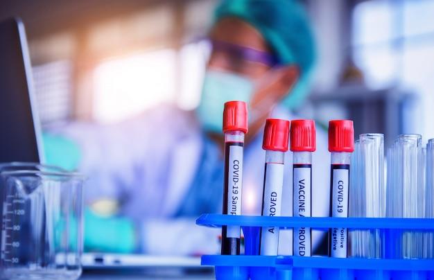 Pesquisa de amostras de sangue para o vírus corona da vacina em hospital de laboratório