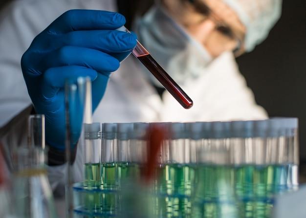 Pesquisador que olha na amostra de sangue no tubo de ensaio.