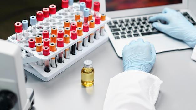Pesquisadora em laboratório com frasco de vacina e tubos de ensaio