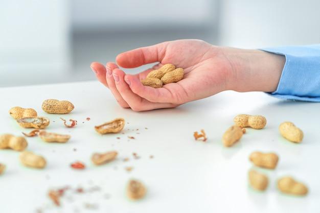 Pessoa que tem uma reação alérgica a amendoins.
