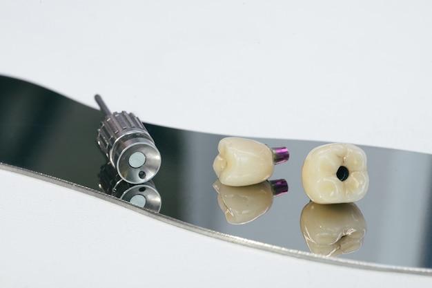 Pilar de coroa de zircônio e híbrido de zircônio. coroa de zircônio retida com parafuso monolítico no implante, parafuso e chave manual para aparafusamento da coroa.