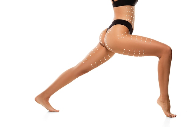 Plano de remoção de celulite. as marcas pretas no corpo de uma jovem se preparando para a cirurgia plástica. conceito de correção corporal, beleza, procedimento cirúrgico, lipoaspiração. corpo feminino em forma. copyspace.