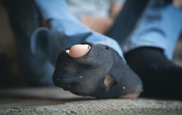 Pobres pés de um sem-teto caucasiano.