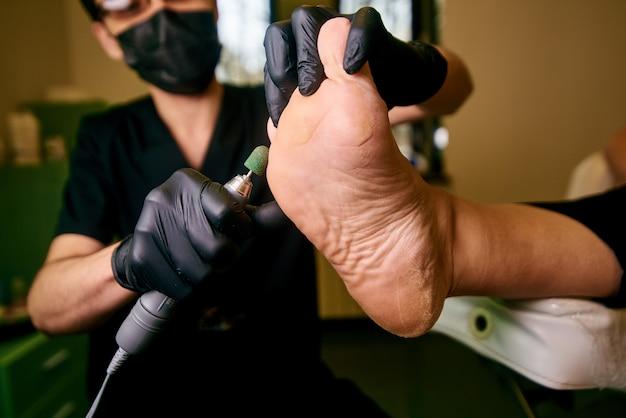 Podologia, tratamento das áreas afetadas dos pés, consultório médico, pedicura, pele danificada