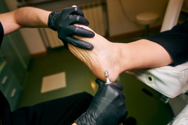 Podologia, tratamento das áreas afetadas dos pés, consultório médico, pedicure