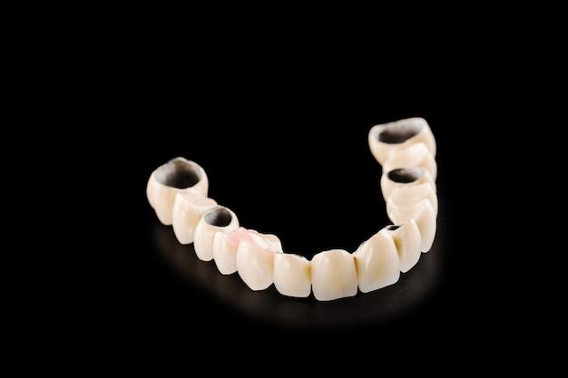 Ponte de cerâmica dentária em fundo preto isolado
