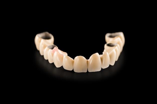 Ponte de cerâmica dentária em preto isolado