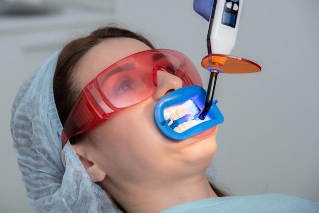 Preparando a cavidade oral para o clareamento com uma lâmpada ultravioleta. fechar-se