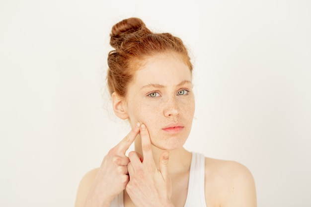 Problema de acne