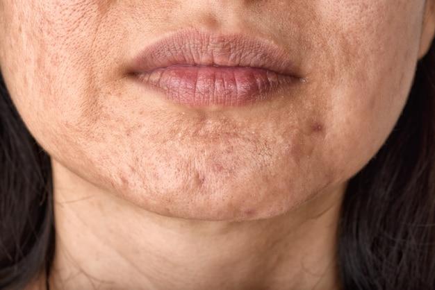 Problema de pele e cicatriz de acne do envelhecimento com espinhas
