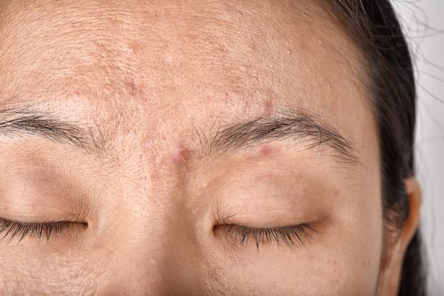 Problema de pele facial e cicatriz de acne do envelhecimento em adultos.