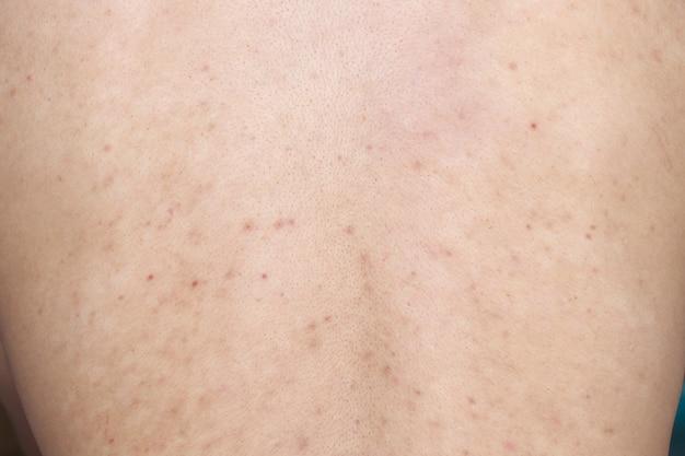 Problema de saúde, doenças de pele. homem mostrando as costas com acne, manchas vermelhas. acne nas costas