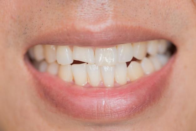 Problema dental da boca do close up. lesões de dentes ou dentes quebrando no masculino. trauma e nervo danos do dente lesionado, lesão permanente dos dentes.