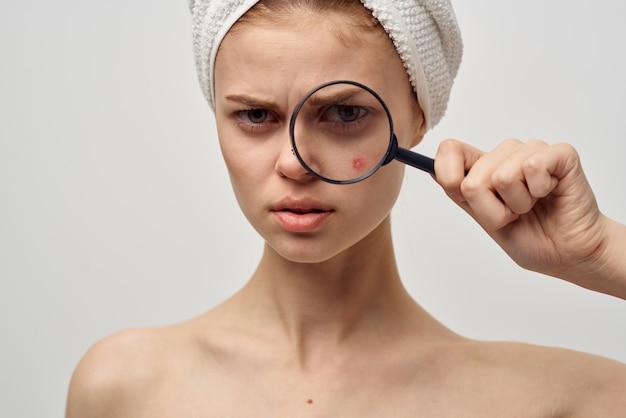 Problemas de pele com acne, mulher com toalha na cabeça, lupa perto do rosto