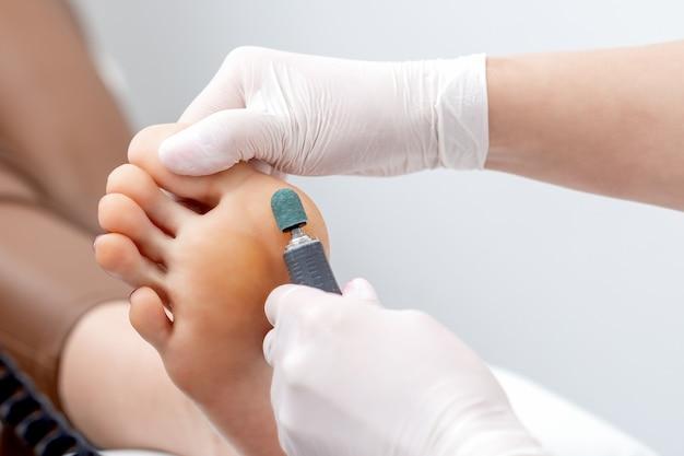 Procedimento de peeling de pedicura de pés de calo em pé pelas mãos de podólogo em luvas brancas no salão de beleza